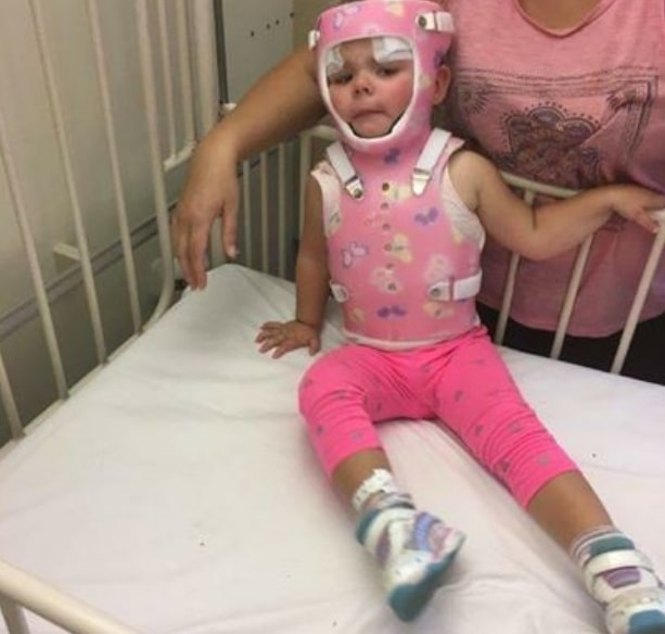 Dziewczynkę czekała długa i żmudna rehabilitacja.